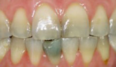 smile before restorations