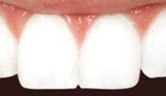 tooth bonded