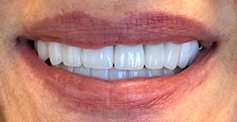 photo of patient's teeth  after treatment