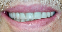 photo of teeth  after treatment