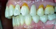 teeth  before dental treatment