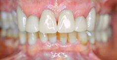 patient teeth  after treatment