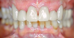 photo of teeth  after