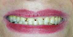 photo of patient's teeth  before treatment