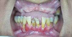 teeth  before treatment