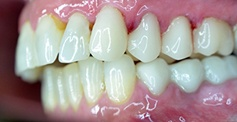 teeth  after dental treatment