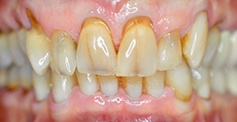 patient teeth  before treatment