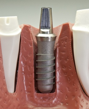 model of dental implant post