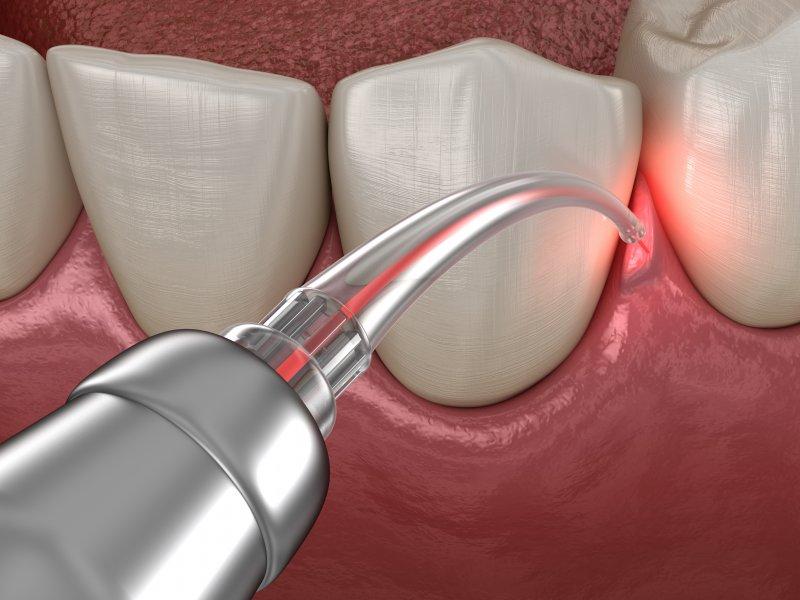 Close-up of dental laser being used between teeth